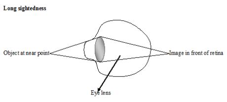 lenses 24