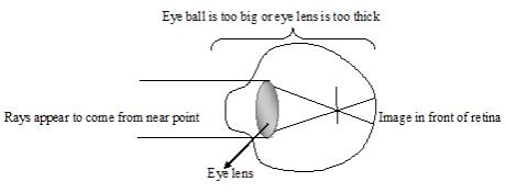 long sightedness 1
